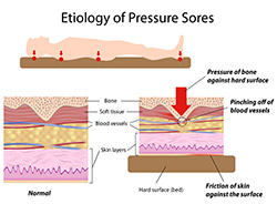 Graphic of the etiology of pressure sores