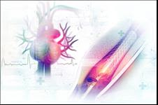 Cardiac Stent graphic