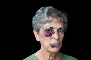 Elderly woman with black eye and bruises on her face
