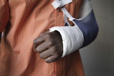 Man with arm in a sling and cast
